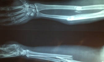 Bone fracture in arm