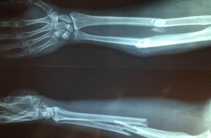 Bone fracture in arm